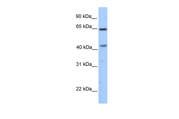 CCDC60 antibody - C-terminal region (ARP53371_P050) in Human MCF-7 cells using Western Blot