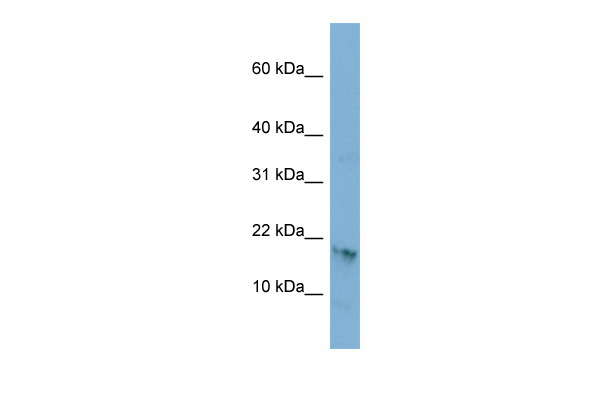 C17orf64 antibody - middle region (ARP53402_P050) in Human PANC1 cells using Western Blot