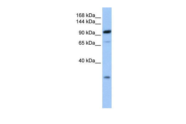 AP2B1 antibody - C-terminal region (ARP53577_P050) in Human Brain cells using Western Blot