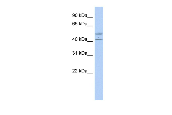 ACTL7B antibody - middle region (ARP53662_P050) in Transfected 293T cells using Western Blot