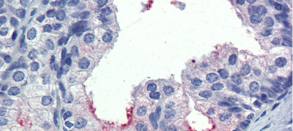 AMH antibody - middle region (ARP54312_P050) in Human Prostate cells using Immunohistochemistry