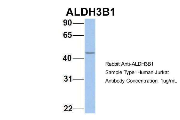 ALDH3B1 antibody - N-terminal region (ARP54347_P050) in Human Jurkat cells using Western Blot