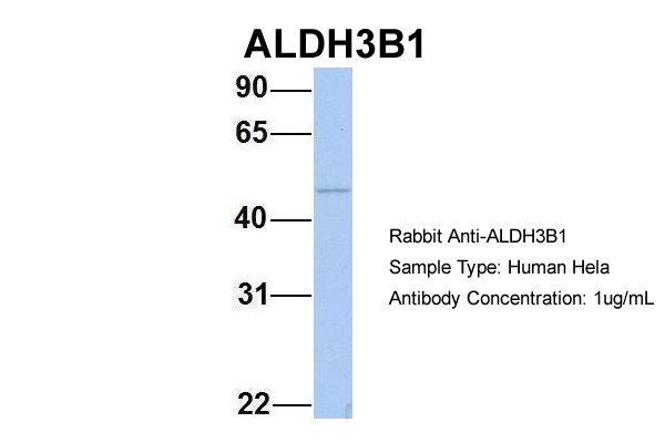 ALDH3B1 antibody - N-terminal region (ARP54347_P050) in Human HeLa cells using Western Blot