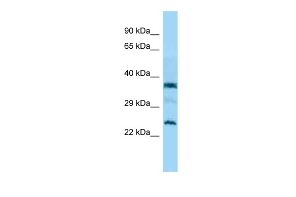 C7orf61 antibody - C-terminal region (ARP54387_P050) in Human Jurkat cells using Western Blot