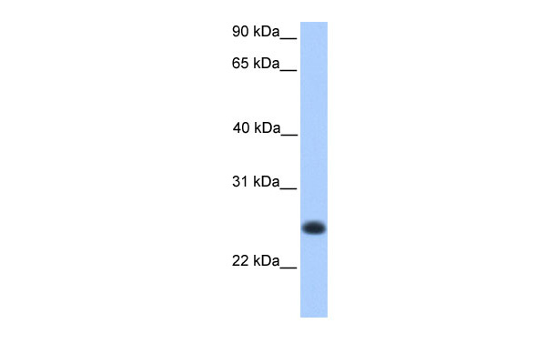 C12orf68 antibody - middle region (ARP54427_P050) in Human Muscle cells using Western Blot