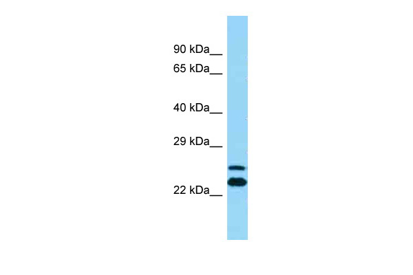 ARFIP2 Antibody - middle region (ARP54459_P050) in Human THP-1 cells using Western Blot