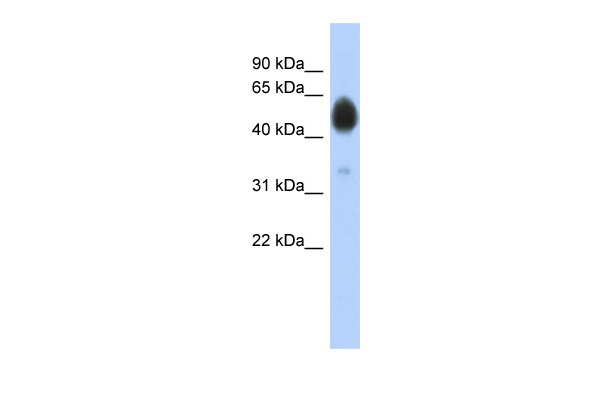 ARSA antibody - N-terminal region (ARP54528_P050) in Human COLO205 cells using Western Blot