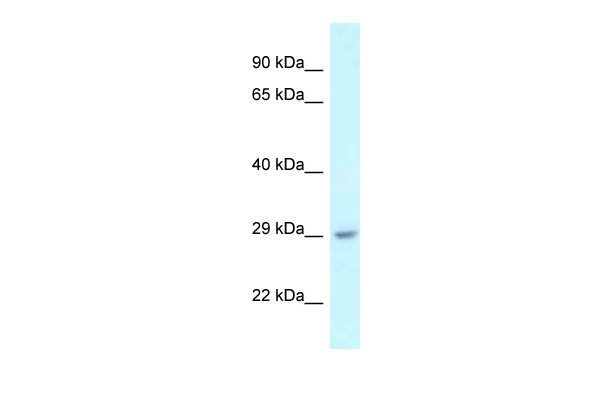 4933434E20Rik antibody - N-terminal region (ARP54536_P050) in Mouse Liver cells using Western Blot
