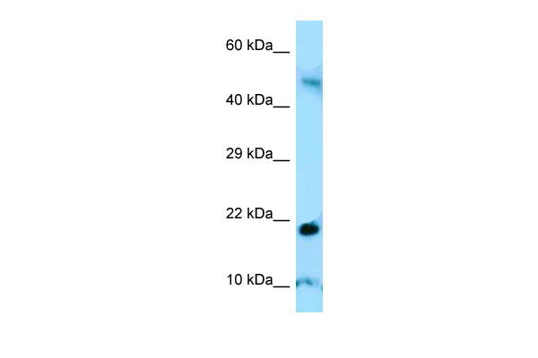 AMELY antibody - C-terminal region (ARP54565_P050) in Human Thymus cells using Western Blot
