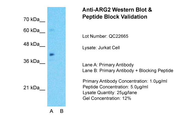 ARG2 antibody - C-terminal region (ARP54567_P050) in Jurkat cells using Western Blot