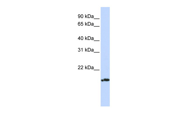 PLDN antibody - middle region (ARP54890_P050) in Human Jurkat cells using Western Blot