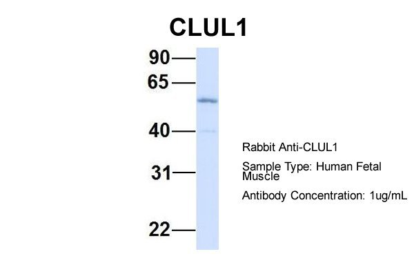 CLUL1 antibody - middle region (ARP55044_P050) in Hum. Fetal Muscle cells using Western Blot
