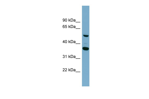 ADAMDEC1 antibody - middle region (ARP55070_P050) in Human ACHN cells using Western Blot