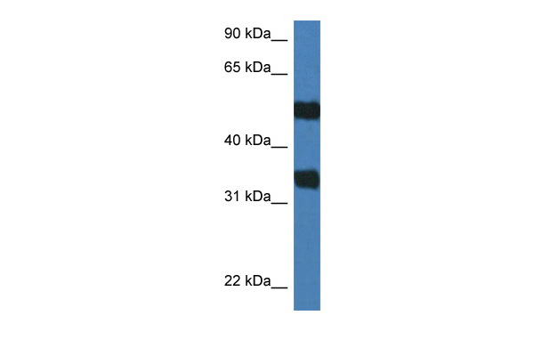 Arsg antibody - C-terminal region (ARP55122_P050) in Mouse Spleen cells using Western Blot