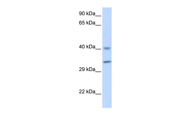 ALKBH3 antibody - middle region (ARP55429_P050) in Human Muscle cells using Western Blot