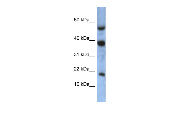ATXN7L1 antibody - middle region (ARP55521_P050) in Human MCF-7 cells using Western Blot