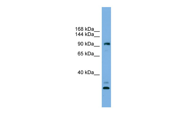 CCDC110 antibody - middle region (ARP55544_P050) in Human HeLa cells using Western Blot