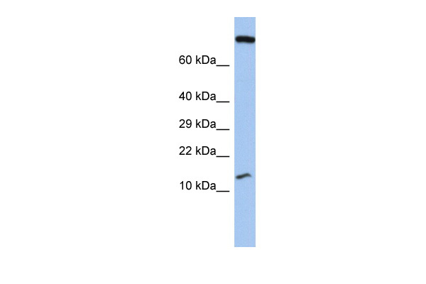 FLJ37543 antibody - middle region (ARP55684_P050) in Human Stomach cells using Western Blot