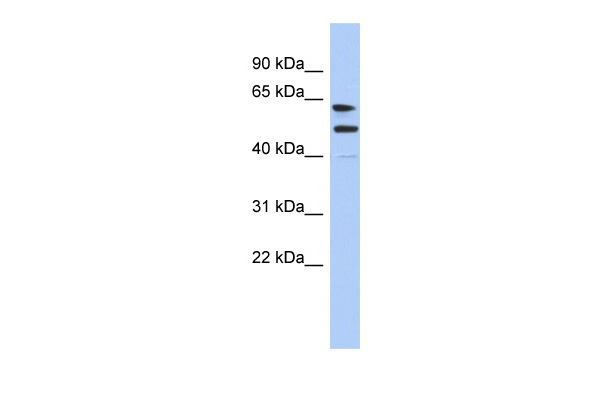 CXorf67 antibody - middle region (ARP55963_P050) in Human Placenta cells using Western Blot