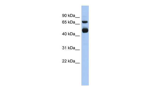 ALOX15 antibody - middle region (ARP56030_P050) in Human Heart cells using Western Blot