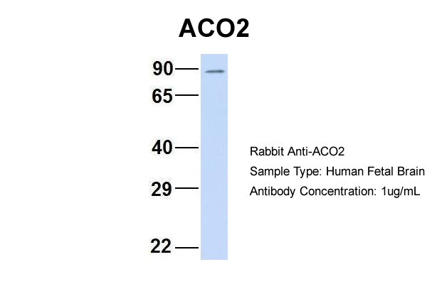 ACO2 antibody - C-terminal region (ARP56302_P050) in Hum. Fetal Brain cells using Western Blot