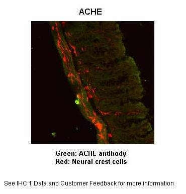 ACHE antibody - N-terminal region (ARP56761_P050) in Mouse Gut cells using Immunohistochemistry