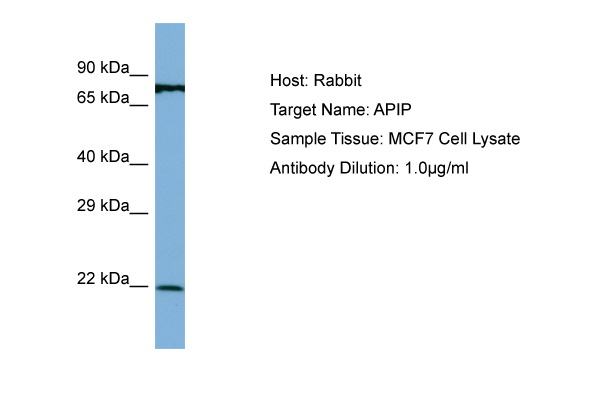 APIP Antibody - N-terminal region (ARP56788_P050) in Human MCF7 cells using Western Blot