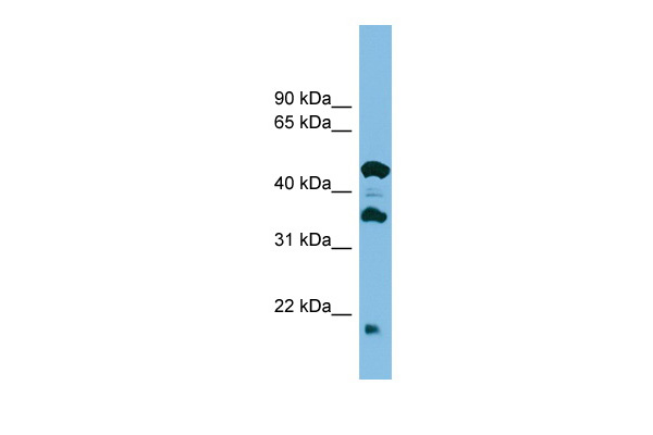 C11orf73 antibody - middle region (ARP56903_P050) in Human ACHN cells using Western Blot