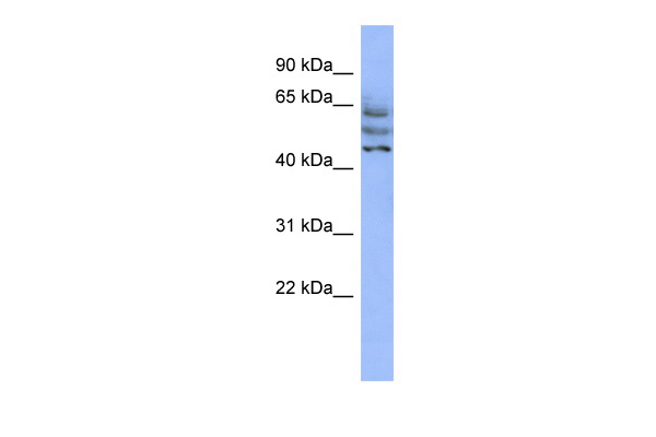 C3orf19 antibody - middle region (ARP56918_P050) in Human HepG2 cells using Western Blot