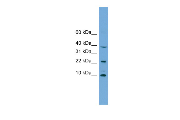 CHCHD8 antibody - middle region (ARP56948_P050) in Human Jurkat cells using Western Blot