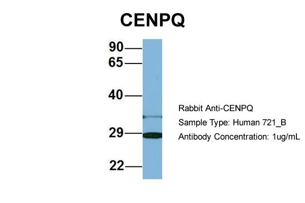 CENPQ antibody - N-terminal region (ARP57121_P050) in Human 721_B cells using Western Blot
