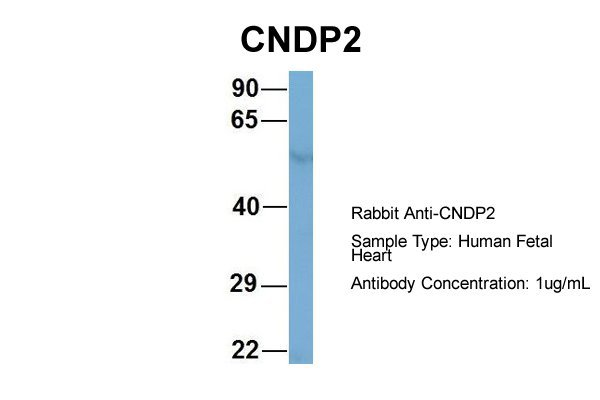 CNDP2 antibody - middle region (ARP57168_P050) in Hum. Fetal Heart cells using Western Blot