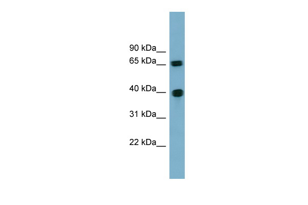 CCNJ antibody - N-terminal region (ARP57329_P050) in Human 721_B cells using Western Blot