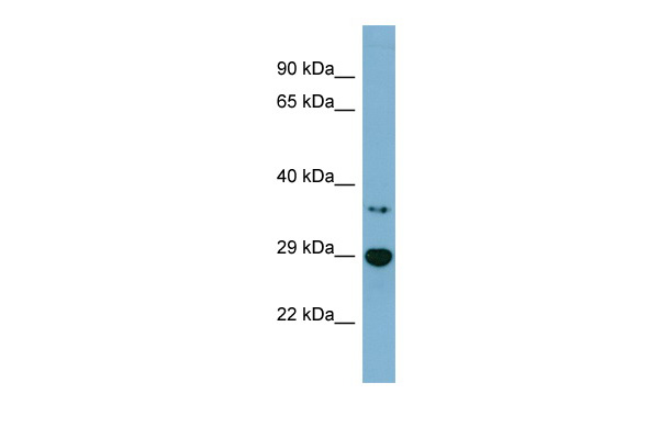 BDH2 antibody - middle region (ARP57360_P050) in Human Jurkat cells using Western Blot
