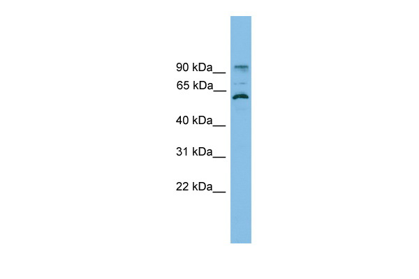 ANKRD5 antibody - N-terminal region (ARP57591_P050) in Human HT1080 cells using Western Blot