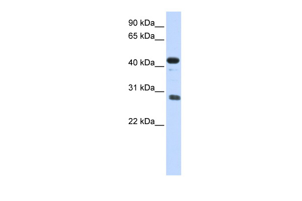 CDCA5 antibody - middle region (ARP58264_P050) in Human Placenta cells using Western Blot