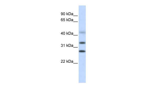 CENPH antibody - middle region (ARP58266_P050) in Human Liver cells using Western Blot