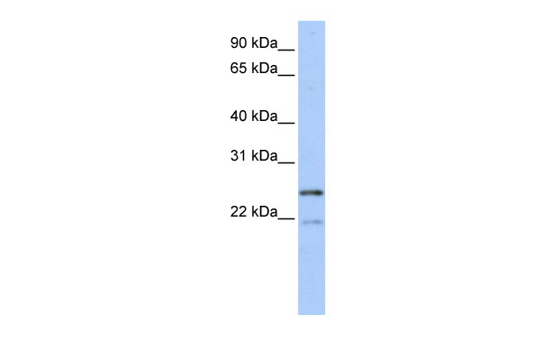 BTF3L3 antibody - middle region (ARP58359_P050) in Human MCF-7 cells using Western Blot