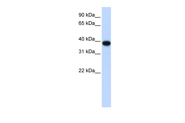 CDC2 antibody - middle region (ARP58402_P050) in Human HEK293T cells using Western Blot