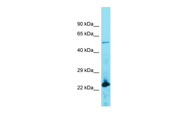 ACOT4 Antibody - middle region (ARP58412_P050) in Human Lymph Node Tumor cells using Western Blot