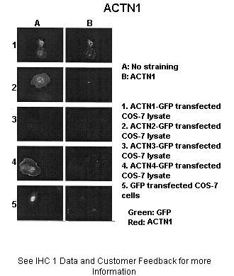 ACTN1 antibody - N-terminal region (ARP58413_P050) in rACTNX-GFP cells using Immunohistochemistry