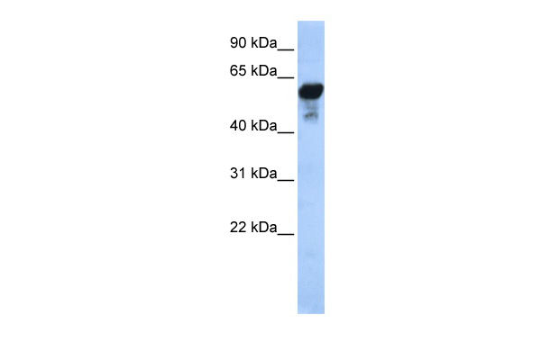 ALDH1B1 antibody - middle region (ARP58417_P050) in Human HeLa cells using Western Blot