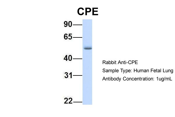 CPE antibody - N-terminal region (ARP58445_P050) in Hum. Fetal Lung cells using Western Blot