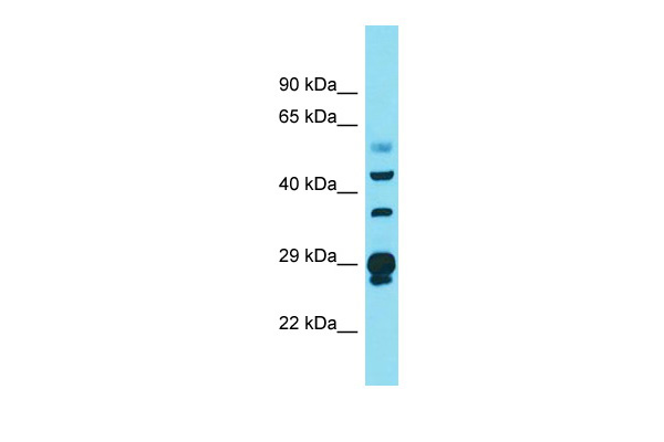 CRYL1 Antibody - N-terminal region (ARP58609_P050) in Human Ovary Tumor cells using Western Blot