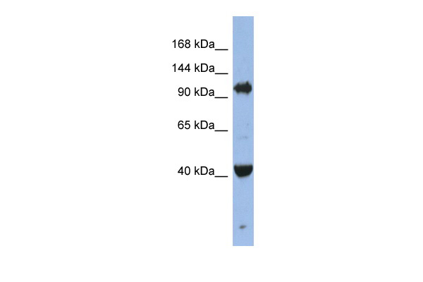 EIF2C4 antibody - middle region (ARP58795_P050) in Human Jurkat cells using Western Blot