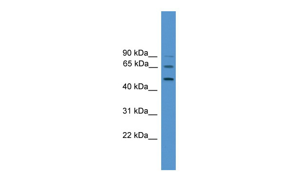 ATG4D antibody - middle region (ARP58865_P050) in Human HCT15 cells using Western Blot