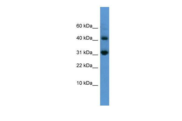 CASP7 antibody - N-terminal region (ARP58995_P050) in Human OVCAR3 cells using Western Blot