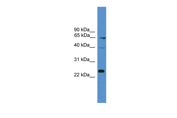 CD7 antibody - middle region (ARP59112_P050) in Human MCF-7 cells using Western Blot