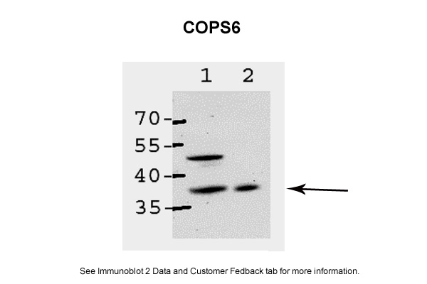 COPS6 antibody - middle region (ARP59350_P050) in Human, Mouse cells using Western Blot