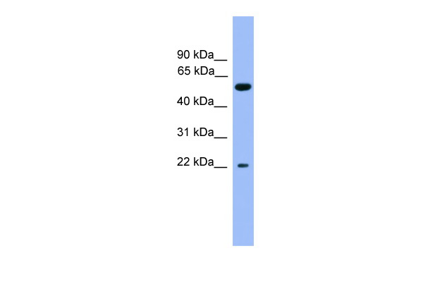 COCH antibody - C-terminal region (ARP59584_P050) in Human Liver cells using Western Blot